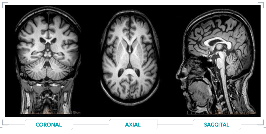MRI images of White Matter lesions in Patients with MS