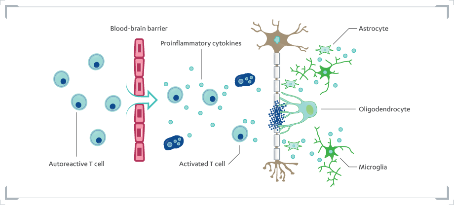Picture of Glial Cell Activity in the Pathogenesis of MS