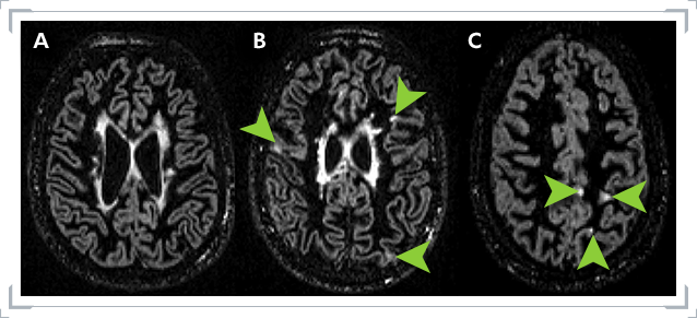 MRI images of Grey Matter and White Matter lesions obtained by using DIR technology