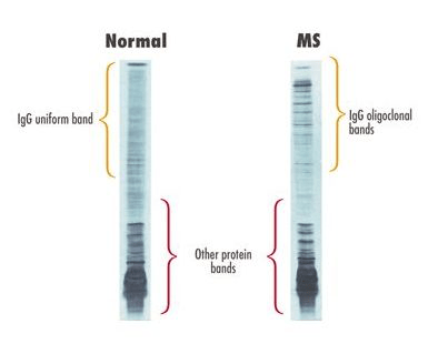 Graphic showing MS Test - Oligoclonal Banding in CSF